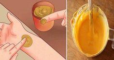 Voici ce qu'ils ont oublié de vous dire sur l'utilisation du curcuma (pour la douleur, les blessures, les dents, la peau et bien plus)