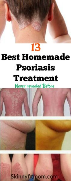 Psoriasis Diet - Learn how to remove psoriasis from any part of the body with these 13 Magical Homemade Psoriasis Treatment Never Revealed Before. Causes Of Cellulite, Reduce Cellulite, Cellulite Cream, Anti Cellulite, Psoriasis Diet, Psoriasis Remedies, How To Cure Psoriasis, Psoriasis Symptoms, Cellulite Remedies