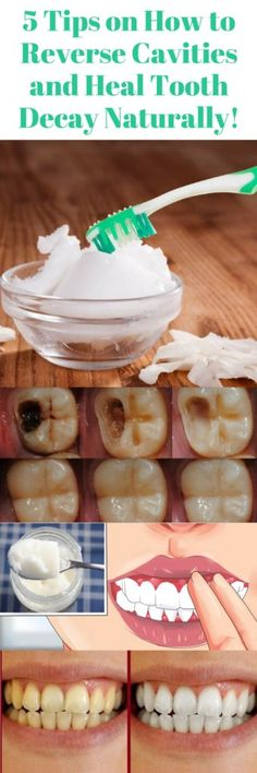 Are 5 Tips On How To Reverse Cavities & Heal Tooth Decay Naturally! Here Are 5 Tips On How To Reverse Cavities & Heal Tooth Decay Naturally! Here Are 5 Tips On How To Reverse Cavities & Heal Tooth Decay Naturally! Gum Health, Teeth Health, Healthy Teeth, Dental Health, Health Tips, Oral Health, Eat Healthy, Dental Care, Dental Hygiene