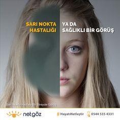 Yaşa bağlı makula dejenerasyonu ya da halk arasında bilinen adı ile Sarı Nokta Hastalığı gözümüzün görme hücrelerinin bulunduğu makula tabakasında meydana gelen ve genellikle ileri yaşlarda görülen deformasyonun adıdır. Sarı nokta hastalığı günümüzde vitrektomi (retina ameliyatı) ile tedavi edilebilmektedir. Retina cerrahisinde uzman göz hekimleri tarafından Netgöz Cerrahi Tıp Merkezi'nde Sarı Nokta ameliyatları başarılı bir şekilde uygulanmaktadır.     Sarı Nokta Hastalığı (Yaşa Bağlı Makula De Laser Eye Surgery, Eyes, Movie Posters, Movies, Films, Film Poster, Cinema, Movie, Film