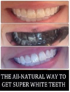 Natural way to get super white teeth