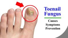 Toenail Fungus – Main Causes and Nail Fungus Symptoms for the Toe Fungus...