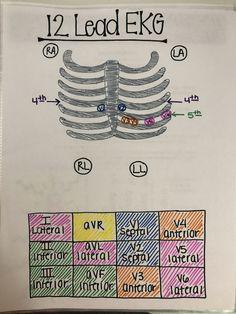 EKG | 12 lead EKG | nursing