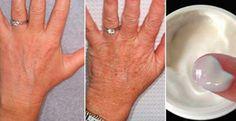 60 Yaşındayım Ancak Ellerim 30 Gibi Görünüyor, Sırrı Her Gün Bu Kremi Uygulamak - Haberinyeri.net - Mobil