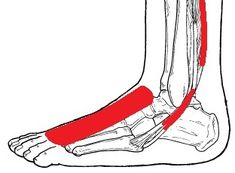 Our foot pain diagram will help you work out what is causing your foot or ankle pain and the best way to treat it. A really useful foot pain identifier tool. Ankle Strengthening Exercises, Balance Exercises, Foot Pain Chart, Haglunds Deformity, Achilles Tendonitis Treatment, Foot Stretches, Foot Pain Relief, Ankle Pain, Shoulder Injuries