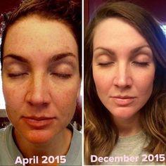 instagram more brown spots damaged skin dark spots beauty skincare