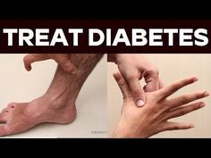 Natural cure in 6 days - No More Diabetes Process - YouTube