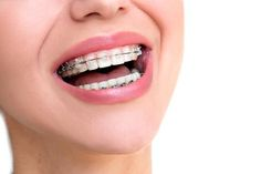 Need Dental Braces in Edmonton? Dental braces are the most suitable solution for you, Our Dental Braces Dentist Near You will help you with your smile. Braces Dentist, Teeth Braces, Best Dentist, Ahmedabad, Damon Braces, Ceramic Braces, Types Of Braces, Invisible Braces, Dental Fillings