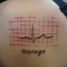 Now there's a good ekg wave. NSR  + ; )
