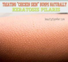 Lose That Chicken Skin: How to Get Rid of Those Acne Bumps on Your Skin Naturally : Keratosis Pilaris