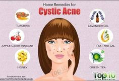 Home Remedies for Open Pores - Page 2 of 3 | Top 10 Home Remedies