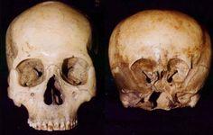 O Misterioso Crânio Starchild A caveira Starchild foi descoberta em uma mina…