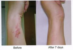 Jeunesse Results check this site out to order your products http://www.mckeonm.jeunesseglobal.com/default.aspx#