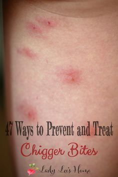 Are you covered in chigger bites and about to lose you mind? Here are 47 things you can do to treat and prevent chigger bites!