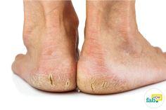 get rid of cracked heels