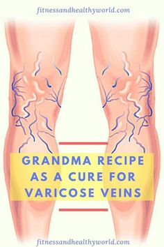 GRANDMA RECIPE AS A CURE FOR VARICOSE VEINS