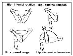 hip-examination.gif 236×182 pixels