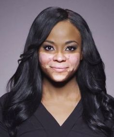 One woman shares her Vitiligo story