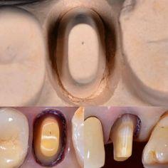 Crown preparation Dentist Reviews, Restorative Dentistry, Glass Of Milk, Dental, Bridge, Crown, Breakfast, Food, Morning Coffee