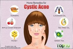 Cystic acne causes? How to get rid of cystic acne overnight home remedy? How to shrink a cystic pimple? and Home remedies for cystic acne Cystic Acne Remedies, Cystic Acne Treatment, Oily Skin Treatment, Natural Acne Remedies, Home Remedies For Acne, Skin Care Remedies, Cystic Pimple, Acne Treatments, Scar Treatment