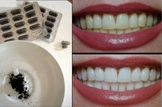 use charcoal to whiten your teeth! Leave for three min Beauty Secrets, Beauty Hacks, Cosmetic Treatments, Chocolate Chip Recipes, Diy Spa, Slow Food, Natural Herbs, Natural Cosmetics, Health And Beauty