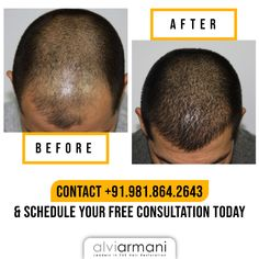 Start your transformation journey with Alvi Armani -India and gain natural-looking hair that will last for a lifetime. Call us at to schedule a free consultation today! Hair Transplant In India, Hair Restoration, Fix You, Appointments, Gain, Schedule, Journey, Natural, Free