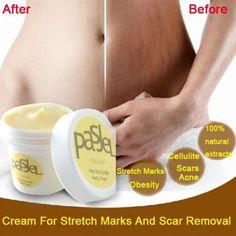 50g Wertvolle Haut Körper Creme Entfernen Dehnungsstreifen Behandlung Postpartale Reparatur Whitening Cream Schwangerschafts Narbe Entfernung
