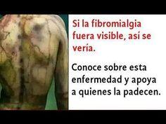 Los Síntomas De La Fibromialgia Que NO Debes Dejar Pasar - Qué Es La Fib...