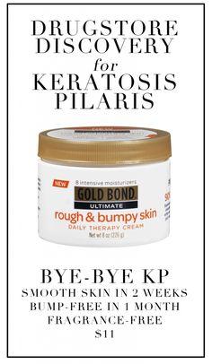 Buh bye, KP. This stuff really works!
