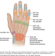 Living with RA.   Good info to know. Advanced Pain Management Treatments  http://painkickers.com/advanced-pain-management/