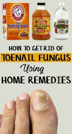 How to Get Rid of Toenail Fungus 9 Home Remedies Included DIY Health Tips Natural Health Remedies, Natural Cures, Herbal Remedies, Foot Remedies, Holistic Remedies, Toenail Fungus Home Remedies, Toenail Fungus Treatment, Cure For Toenail Fungus, Fungus On Toenails