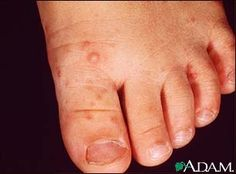 Our doctors are seeing an increase in Hand, Foot & Mouth disease. Here's what you need to know.