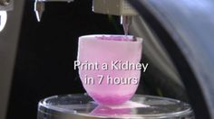 Dr. Anthony Atala pioneered the field of regenerative medicine as the first to successfully engineer, grow and implant a human organ. Now he is using 3d printers to make kidneys, hearts, and many other tissues and organs. All from the patients own cells.