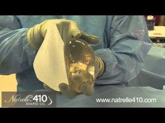 Dr. Allen Gabriel demonstrates benefits of new Natrelle 410 breast implants  #Breast Uplifts #cosmetic surgery France #