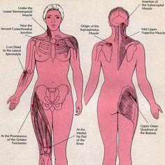 Diagnostic de la fibromyalgie : les 18 points douloureux à la pression