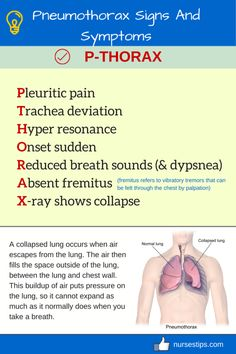 Pneumothorax Signs And Symptoms