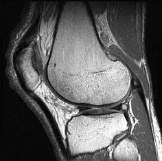 MRI scans are excellent for showing up soft tissue such as ligaments and tendons in joints. This is an MRI scan of a knee. [Image courtesy of GE Healthcare]