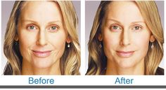 No more wrinkles!
