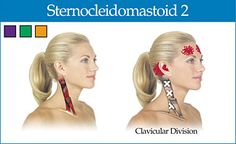 clavicular division of the sternocleidomastoid - Copyright – Stock Photo / Register Mark