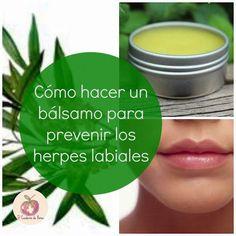 Cómo hacer un bálsamo para prevenir los herpes labiales