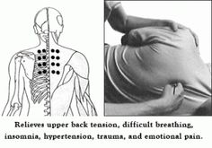 Hypertension, Insomnia & Emotional Healing Acupressure Points - I used to have a practitioner who would put me in Goddess Pose (Supta Baddha Konasana) on a yoga block precisely on those points
