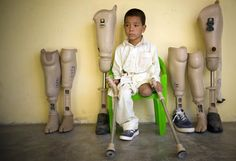 Afghan child in search of a suitable prosthesis, having lost his leg in a land mine explosion.