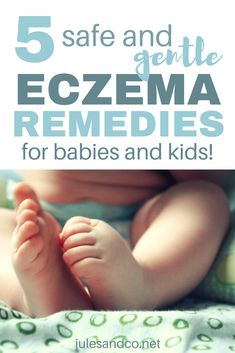 Manage your child's eczema without harsh treatments. You'll love this baby eczema coconut oil treatment plan. Plus learn four more natural eczema cures! Eczema Relief, Itch Relief, Eczema Remedies, Look Here, After Baby, Baby Hacks, Baby Tips, Home Remedies, Bebe