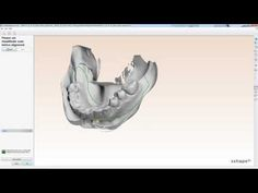 How to order & scan a new orthodontic impression in 3Shape
