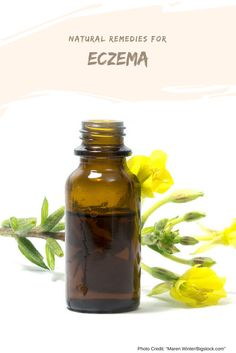 Eczema remedies which are natural, easy to DIY and to put into practice.