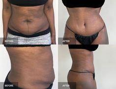 Tummy Tuck: before & after, 3 months post-op  #tummytuck #abdominoplasty #plasticsurgery Tummy Tuck Before After, Tummy Tucks, Abdominal Muscles, Plastic Surgery, 3 Months, Bikinis, Swimwear, How To Remove, Bikini