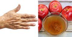 Altersflecken, auch bekannt als Leberflecken sind flache, braune oder schwarze Flecken die auf der Haut erscheinen. Sie variieren in der Grösse und treten am häufigsten auf dem Gesicht, den Händen, den Schultern und den Armen auf, diese Bereiche, die am meisten Sonneneinstrahlung bekommen. Am...