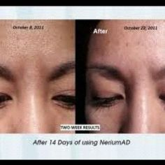 resurface your skin, reverse time, diminish lines, erase sun spots and hyper-pigmentation NeriumAD www.secondblooms.nerium.com