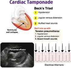 Cardiac Nursing, Nursing Mnemonics, Cardiovascular Nursing, Cardiac Sonography, Nursing School Notes, Nursing Schools, Critical Care Nursing, Emergency Medicine, Clinique