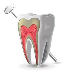 """Endodoncia: es la especialidad que trata con el nervio dental. Los endodoncistas realizan una variedad de procedimientos, incluyendo la terapia de endodoncia (comúnmente conocida como """"matar el nervio"""") retratamientos, cirugía y el tratamiento de traumatismos dentales."""